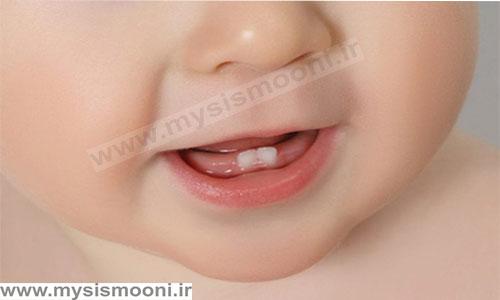 فروش انواع دندان گیر کودک به صورت عمده